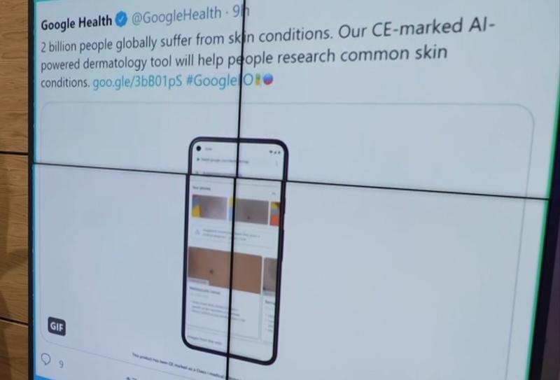 Google-ის ხელოვნური ინტელექტი, რომელიც კანის დაავადებებს ამოიცნობს